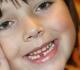 Odontologai užaugins naująją kartą be grąžtų ir adatų
